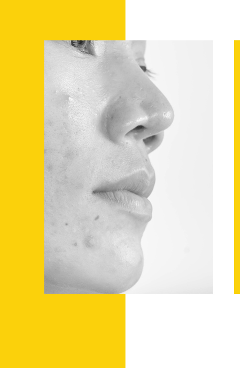 tratamiento del acne precoz en Pontevedra