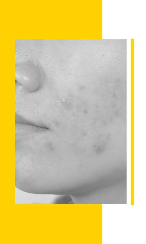 tratamientos marcas del acné Pontevedra