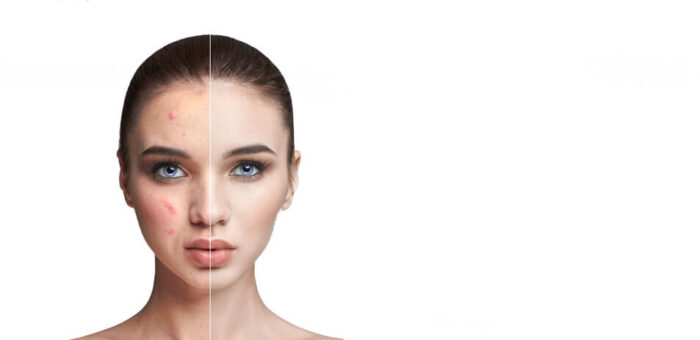 cicatrices-del-acne