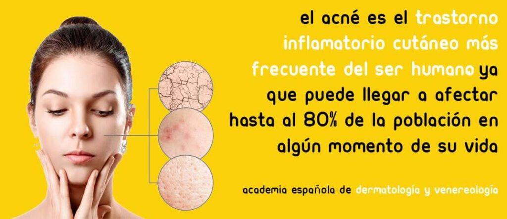 marcas-de-acne-